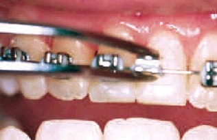 Broken orthodontic bracket