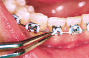 Orthodontic Ligatures