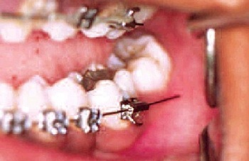Poking orthodontic wire
